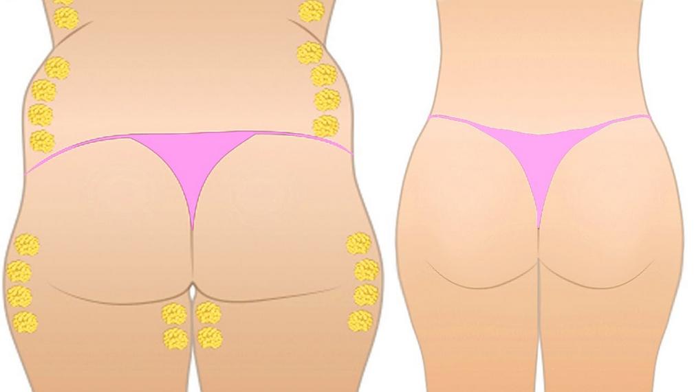 fedtsugning før og efter